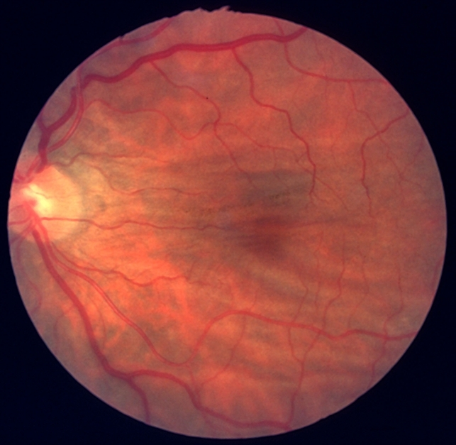 Choroidal Folds Due To Hypotony
