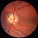 Optic disc drusen, left eye - L stereo