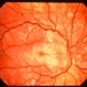 Purtscher retinopathy 2 right eye