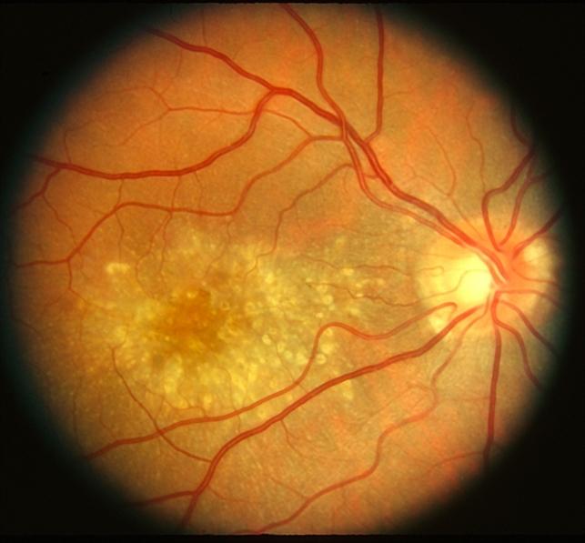 Malattia Leventinese 2 Color Re Retina Image Bank