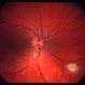 Astrocytic hamartoma of the retina