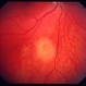 Small choroidal metastasis