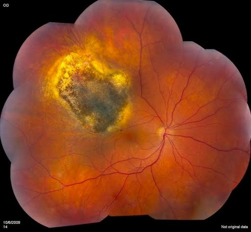 ocular melanoma pictures