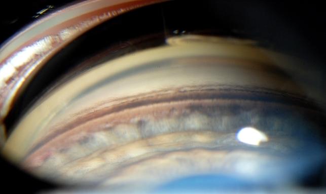 Gonioscopy Pigment Dispersion Glaucoma Retina Image Bank