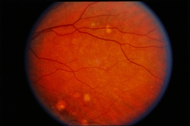 Presumed Ocular Histoplasmosis Syndrome With Choroidal Neovascular Membrane  Presumed Ocular Histoplasmosis