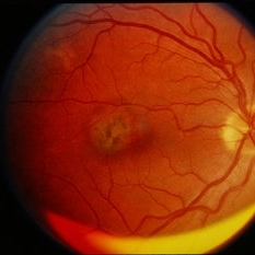 Marvelous Presumed Ocular Histoplasmosis Syndrome With Choroidal Neovascular Membrane  Presumed Ocular Histoplasmosis Syndrome