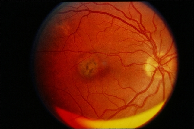Good Presumed Ocular Histoplasmosis Syndrome With Choroidal Neovascular Membrane