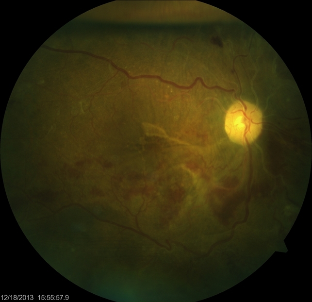 Tractional Retinal Detachment Post Vitrectomy With Residual Gas    Vitrectomy Retinal Detachment