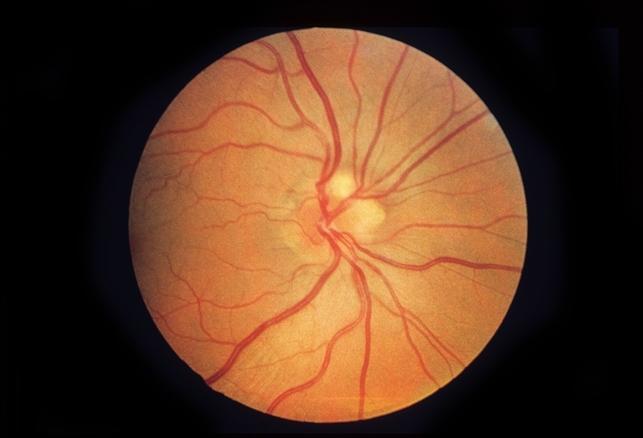 onh drusen retina image bank