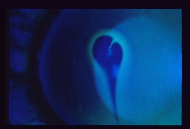 Seidel's Test - Retina Image Bank