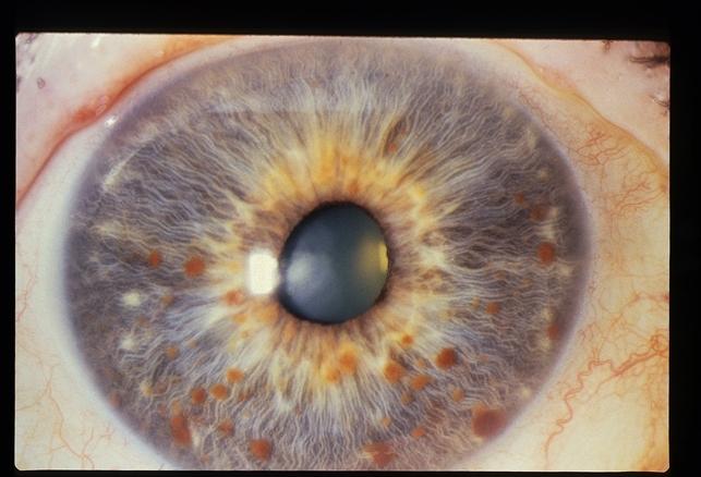 Iris Nodules (Lisch) - Retina Image Bank