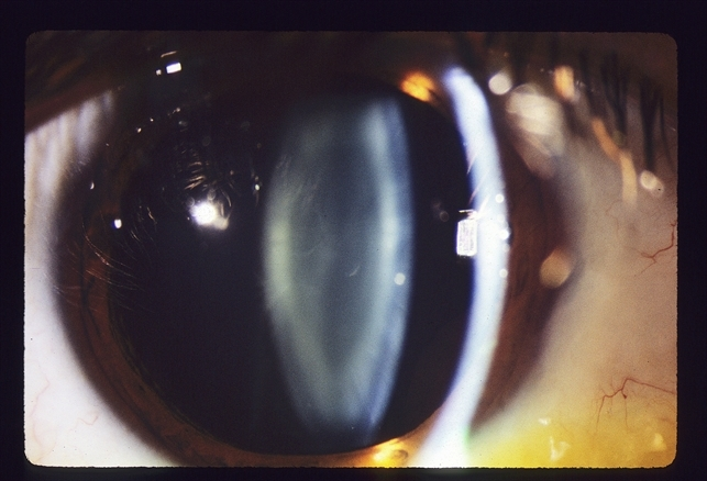 Elegant Dilated Slit Lamp Exam