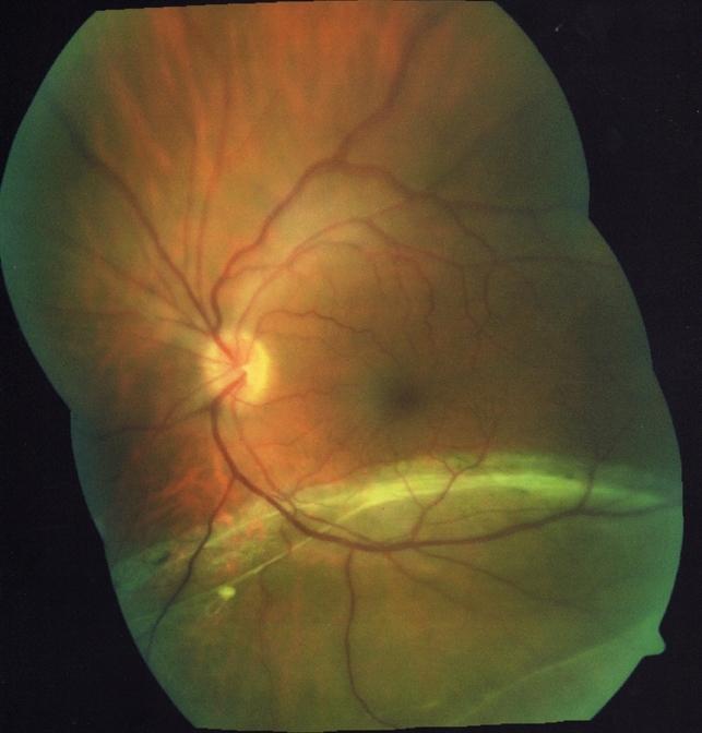 Inferior Rhegmatogenous Retinal Detachment with Subretinal ...