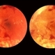 Proliferative Diabetic Retinopathy, In Stereo