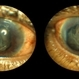 Choroidal Detachment, In Stereo
