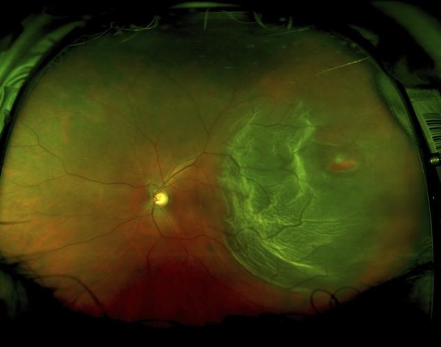 retinal detachment pre-op