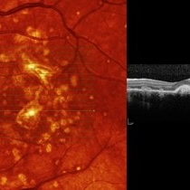 uveitis and macular edema a complex relationship in literature