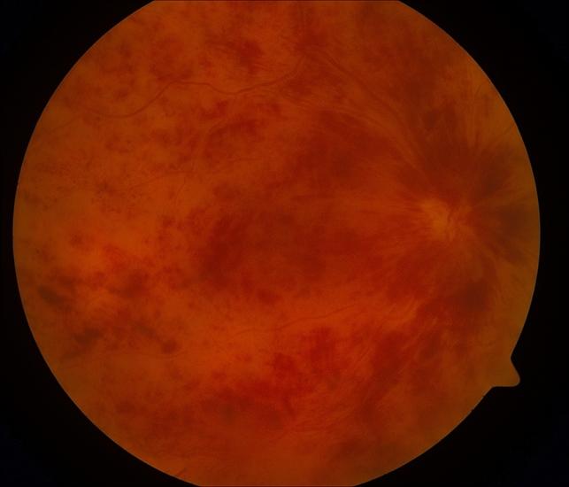 Central Retinal Vein Occlusion - Retina Image Bank