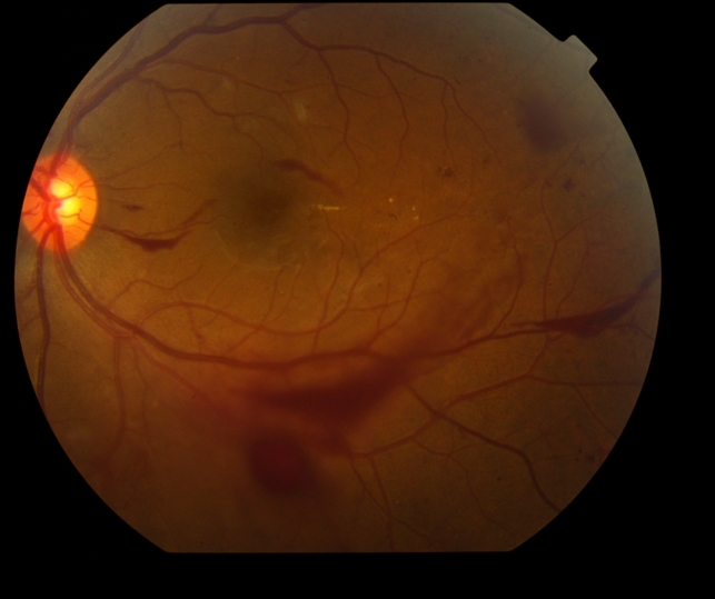 Proliferative Diabetic Retinopathy with Vitreous Hemorrhage - color ...