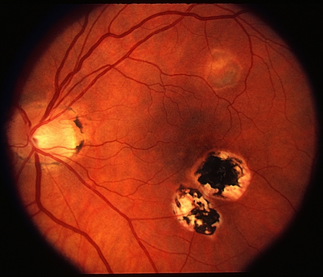 Beautiful Presumed Ocular Histoplasmosis Syndrome Idea Presumed Ocular Histoplasmosis