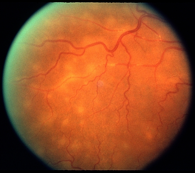uveitis and macular edema a complex relationship
