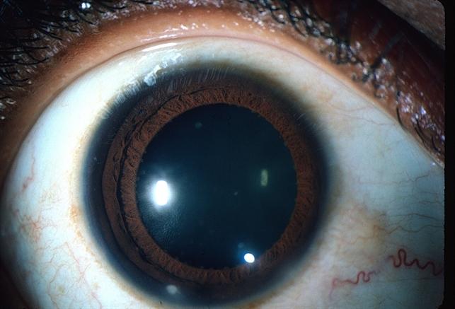 Koeppe nodules - Retina Image Bank
