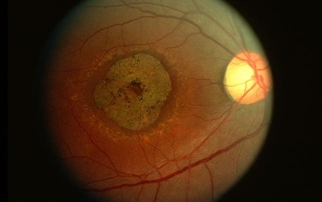 Stargardt's disease - Retina Image Bank