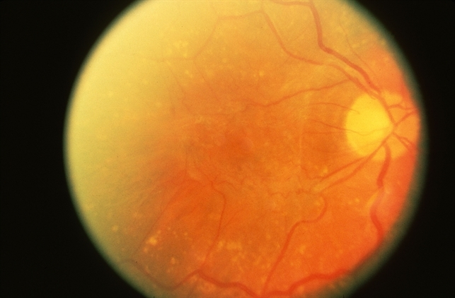 Penetrating Globe Injury - Retina Image Bank