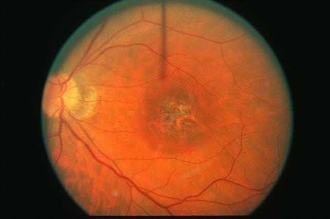 macular dystrophy retina -#main