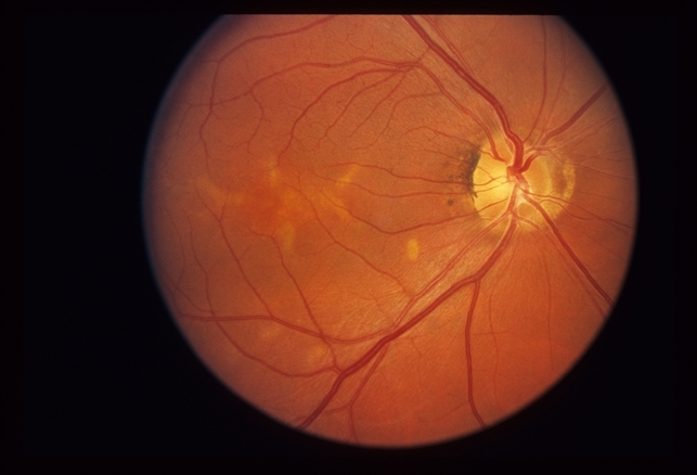 macular dystrophy retina - photo #13