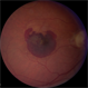 Macular Degeneration with Large Submacular Hemorrhage