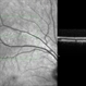 Unilateral Acute Idiopathic Maculopathy