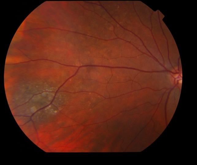 Choroidal Nevus with Drusen - Retina Image Bank