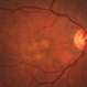 Fibrovascular Retinal Pigment Epithelial Detachment - Color Fundus