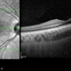 Macular OCT in Right Optic Disc Pit