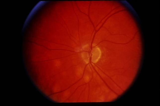 Sarcoidosis Retina