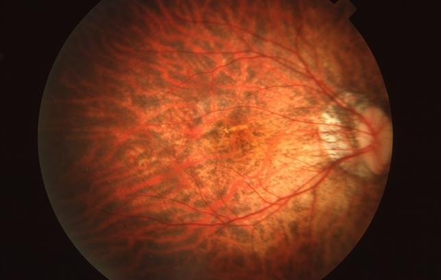 acuitatea vizuală 04 lista echipamentelor pentru cabinetul oftalmologului
