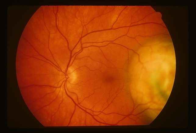 Choroidal Melanoma - Retina Image Bank
