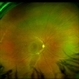 Chronic Central Serous Chorioretinopathy Re color