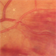 Vein Occlusion Zoom in a BRVO