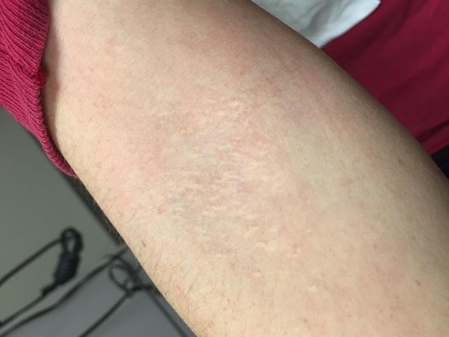 Antecubital Fossa Skin of PXE Patient - Retina Image Bank