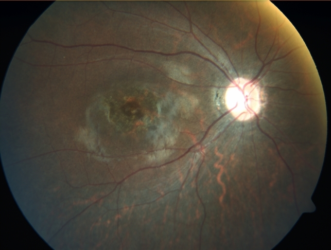 macular dystrophy retina - photo #40