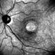 Chronic Full Thickness Macular Hole