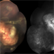 Retinoblastoma: Color Image and Fluorescein Angiography