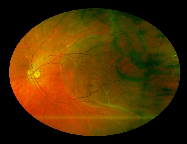 Chronic Foveal Threatening Rhegmatogenous Retinal ...