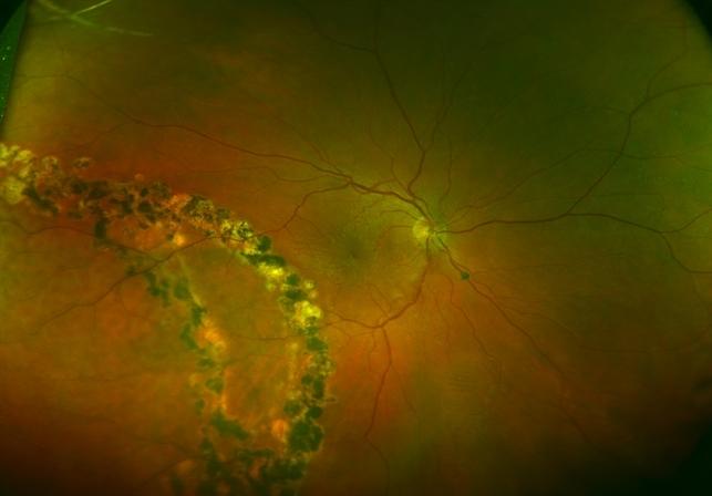 Bilateral Retinoschisis Retinal Detachment