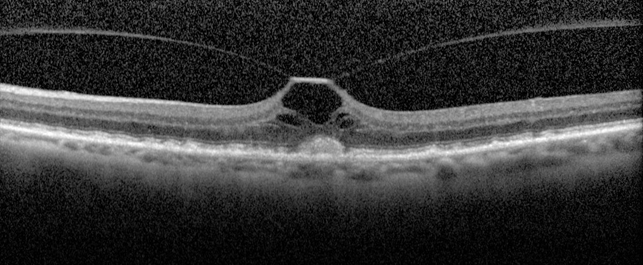 stage 1 macular hole